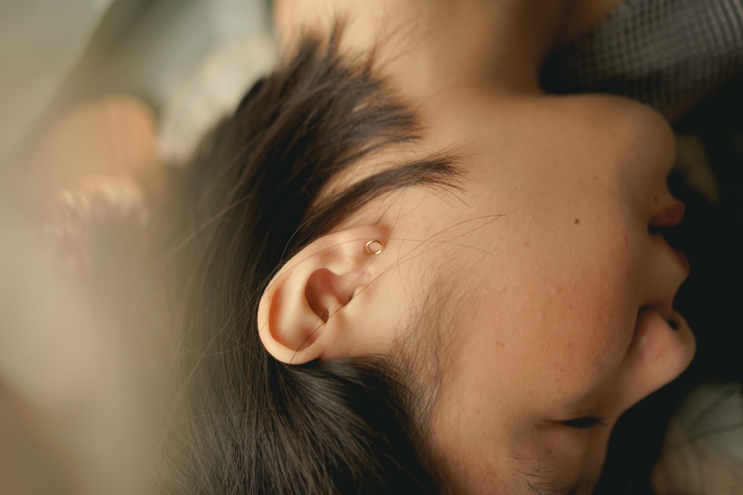 Ringing in the Ears? Try Acupuncture for Tinnitus